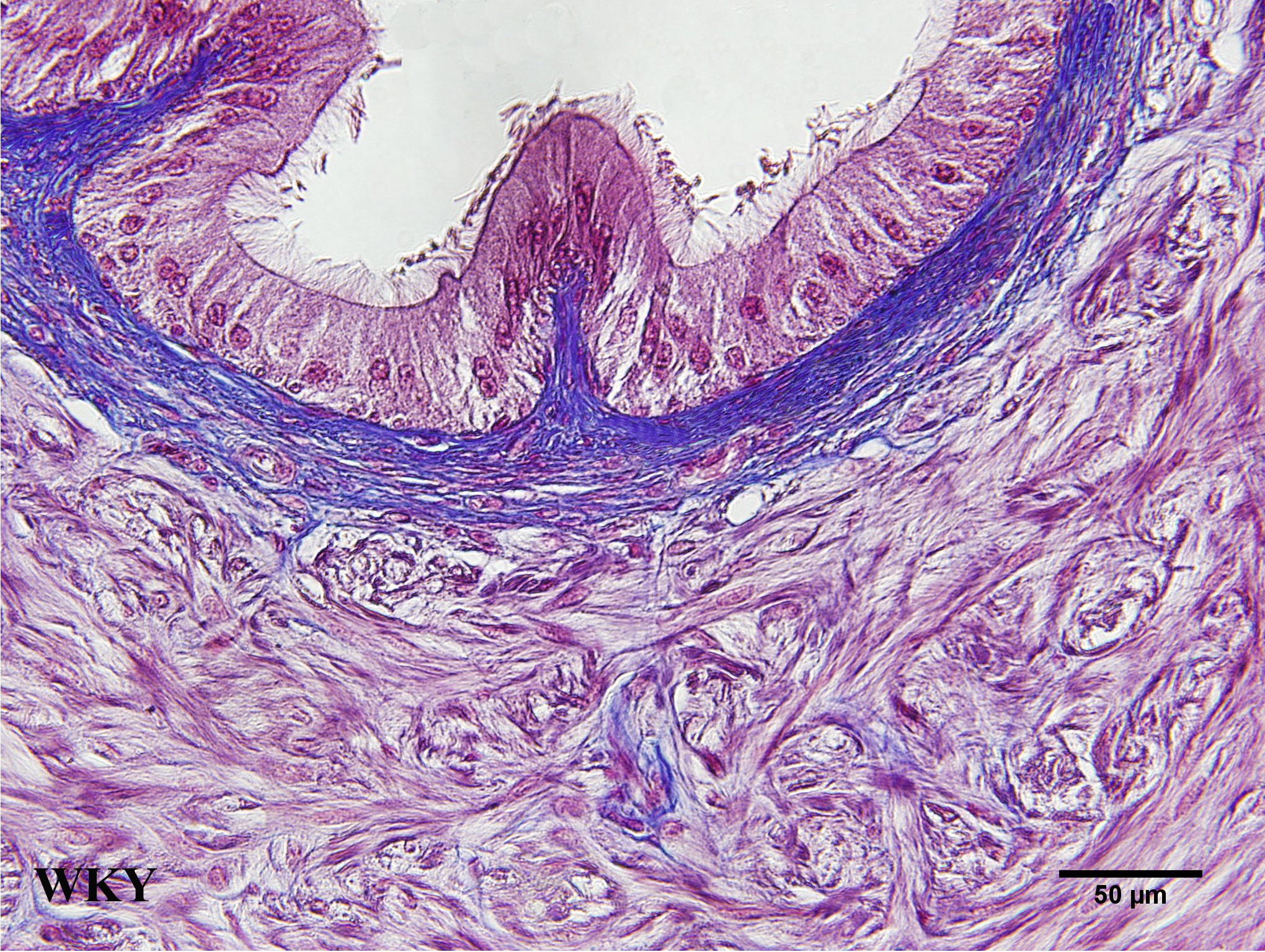 The Distal Vas Deferens Of Spontaneously Hypertensive Rats A